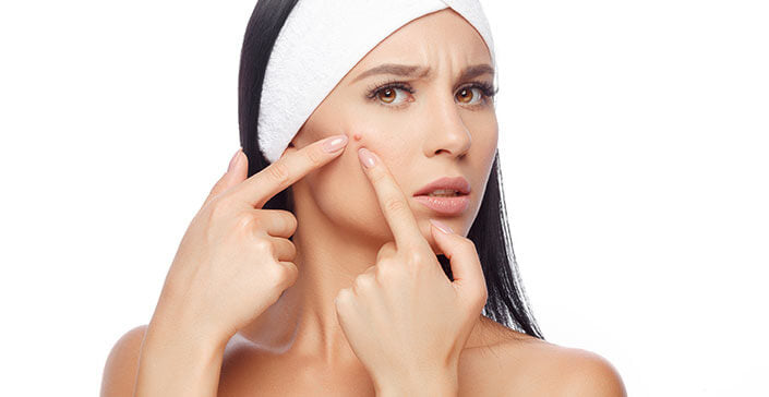 woman, acne, breakout, skin solutions