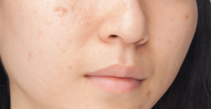 pigmentation, brown spots, skin solutions