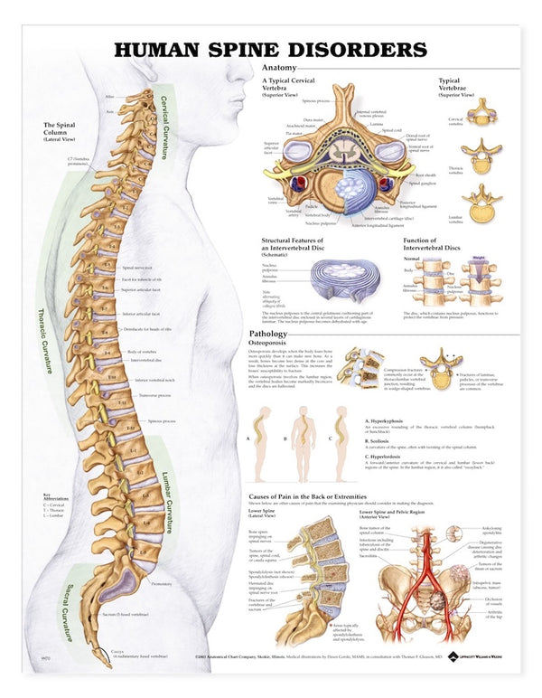Human Spine Disorders Chart
