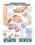 Understanding Carpal Tunnel Syndrome Chart