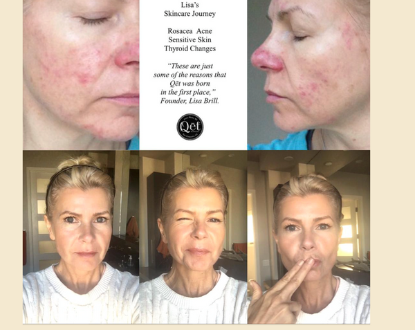 Qēt Botanicals skin care before & after