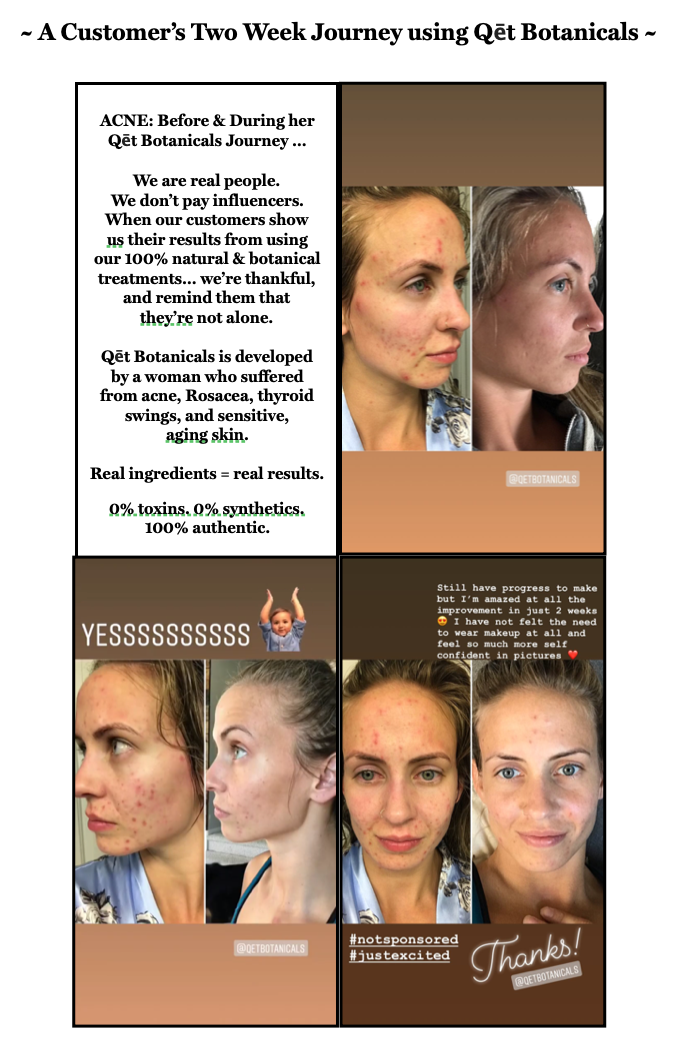 Qet-Botanicals-Before-and-After-Acne-Breakouts-Uneven-Complexion