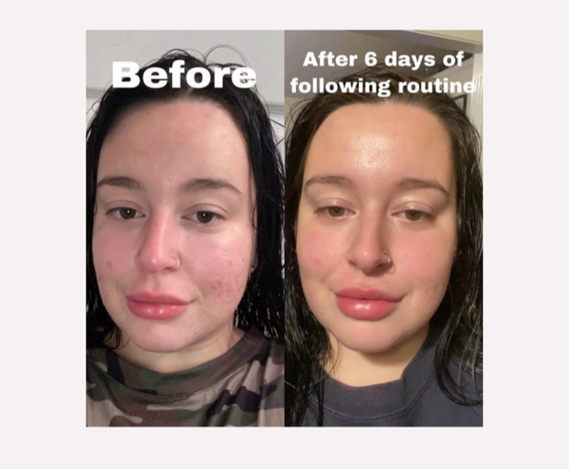 Qet-Botanicals-Before-and-After-Acne-Sensitive-Bumpy-Skin