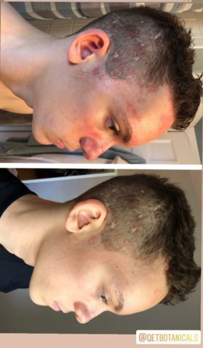 Qet-Botanicals-Before-and-After-Eczema-Psoriasis-on-Scalp