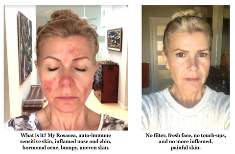 Qet Botanicals Before and After Acne, Rosacea, Sensitive Skin on Founder Lisa Brill