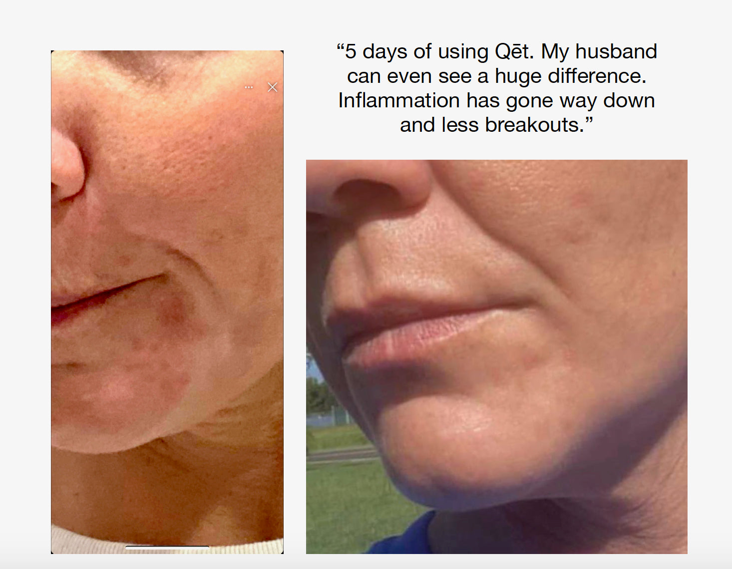 Qet-Botanicals-Before-and-After-Maskne-Hormonal-Acne