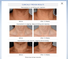 Load image into Gallery viewer, Neck Perfect Complex - MEDfacials