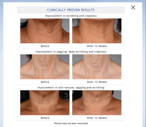 Neck Perfect Complex - MEDfacials