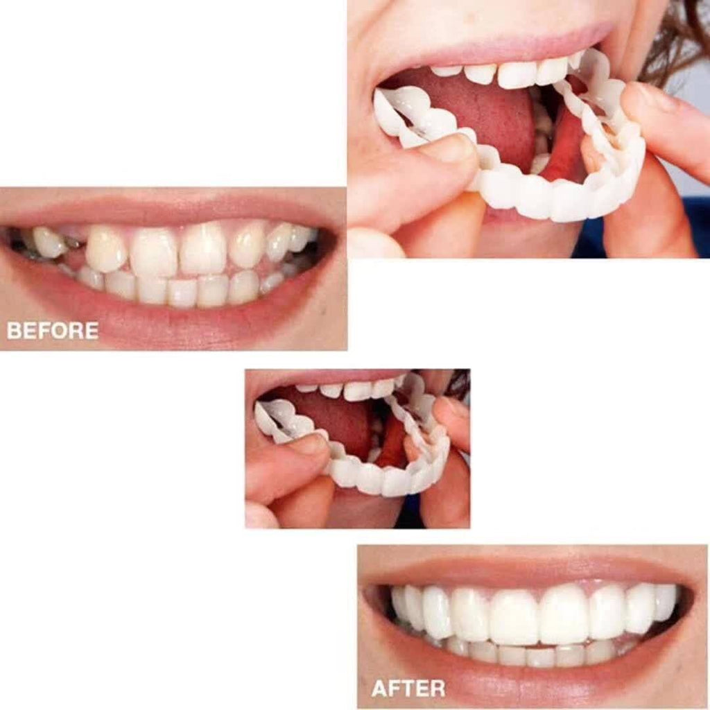 1 Best Smile Veneers