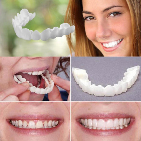 2 Best Smile Veneers