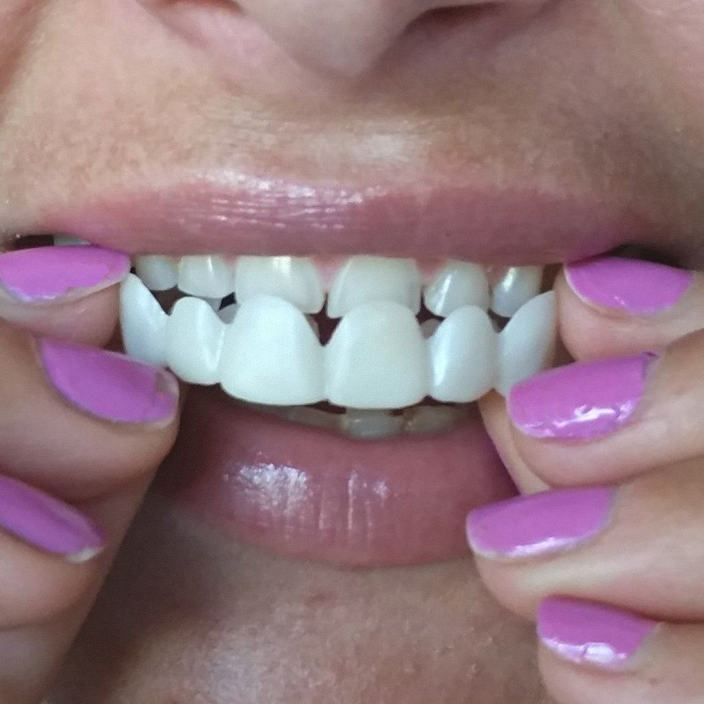 Best Deal Best Smile Veneers