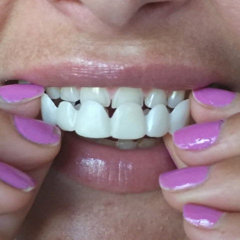 Image of Best Deal Best Smile Veneers