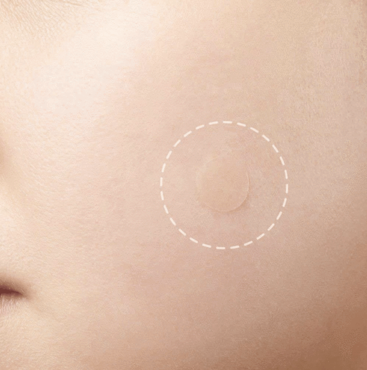 Skin Tag & Acne Patches