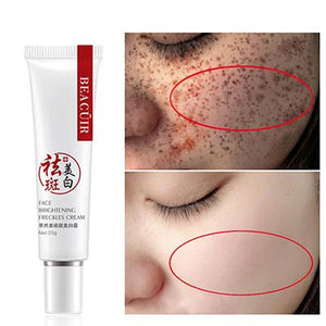 Freckles Removal Cream