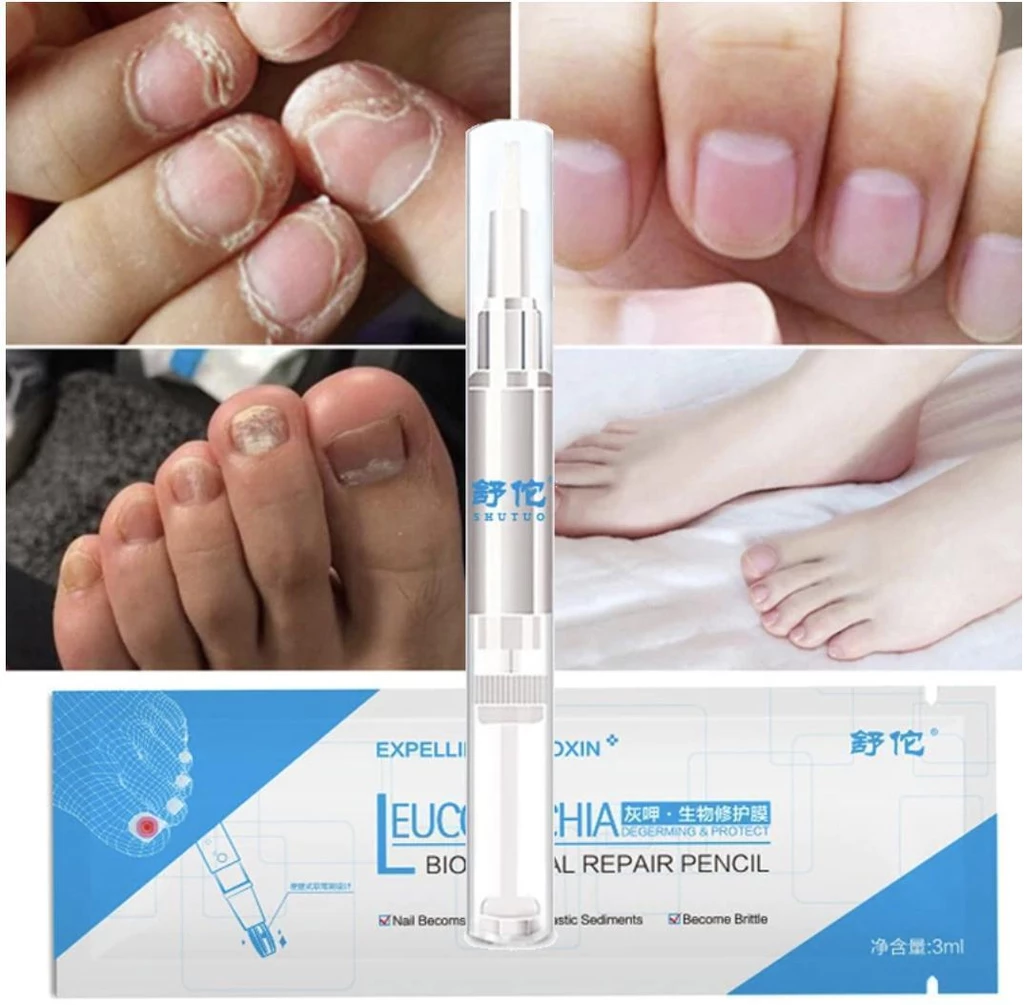 Onychosolve™ Advanced Fungal Nail Repair Pen