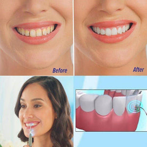 SmileBrite™ Ultrasonic Tooth Stain/Plaque Remover
