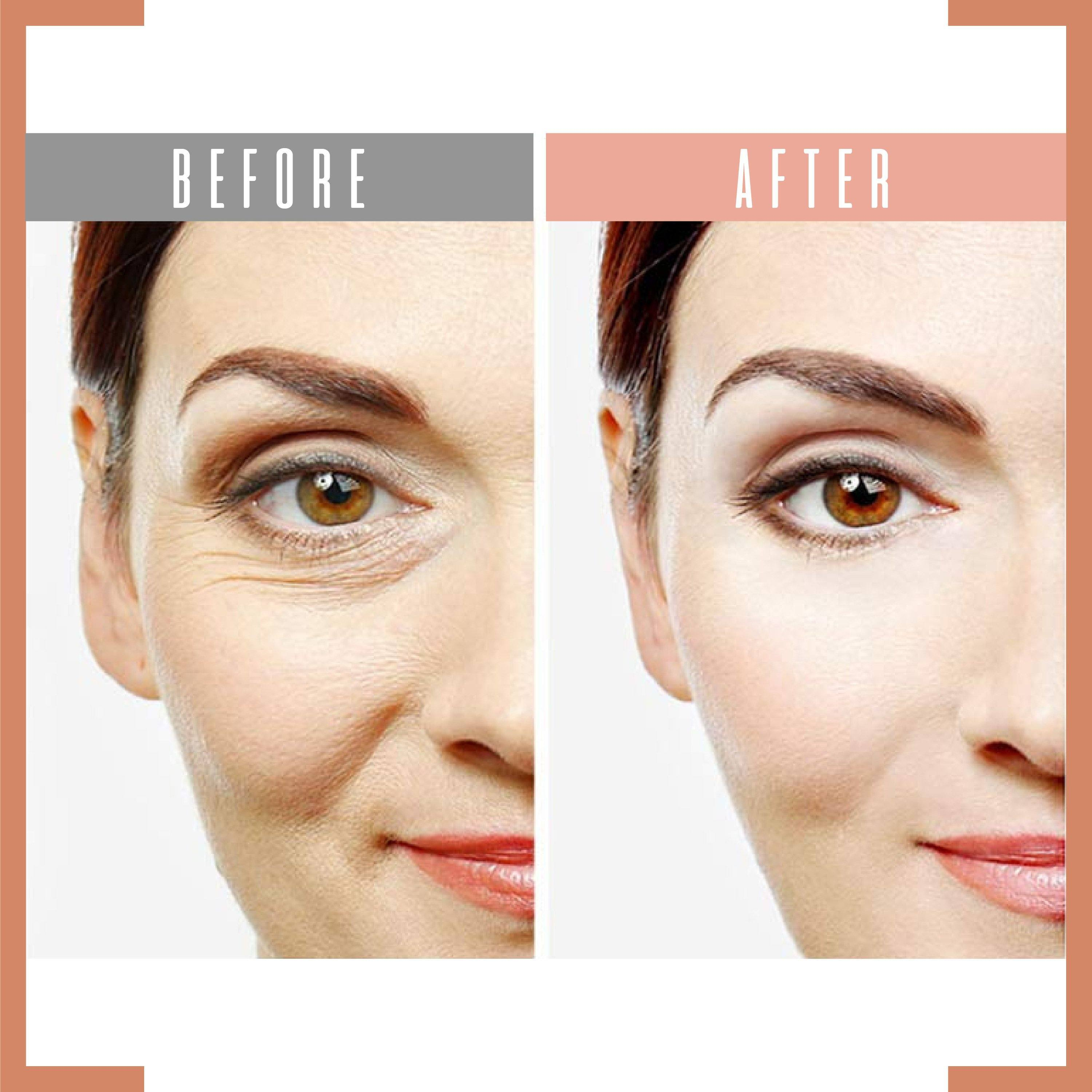 Eye Delight Boost Serum