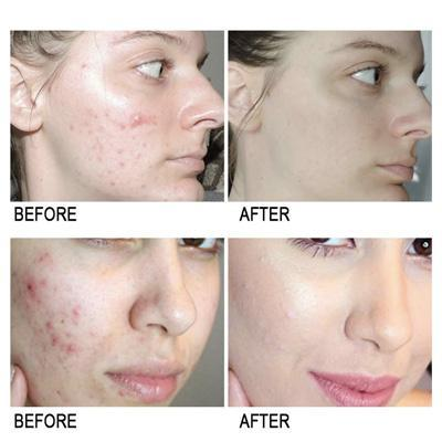 PureSkin™ Anti-Acne Scar Removal Cream