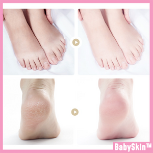 BabySkin Ultimate Foot Peeling Mask