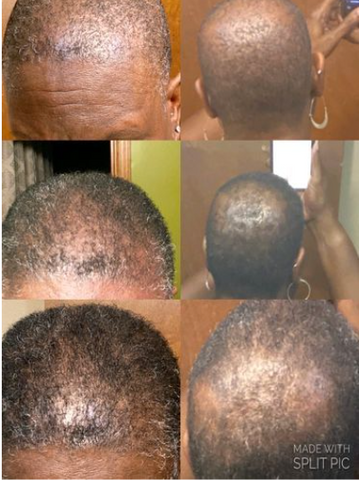 Before and after photo submitted to show progress of hair growth