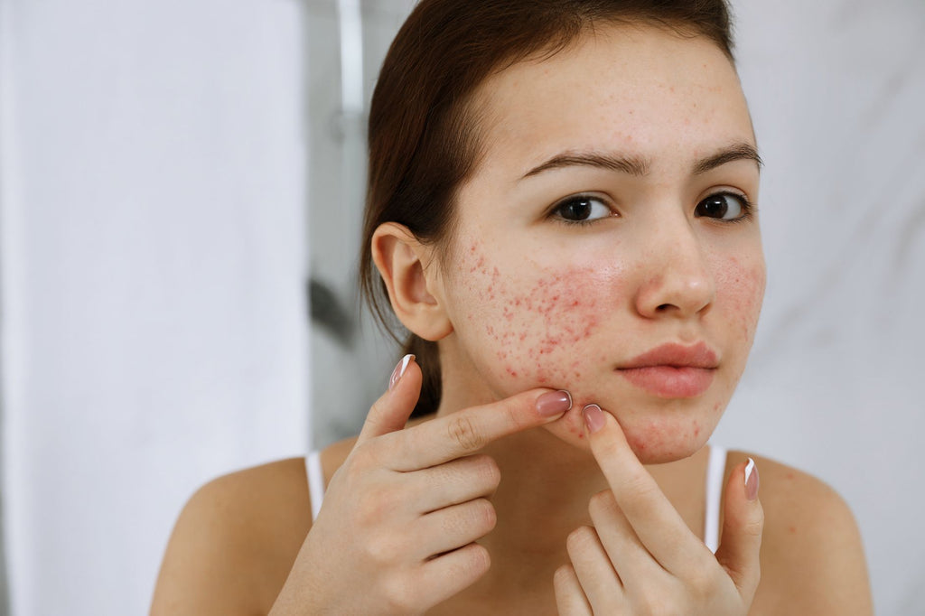 oily skin squeezing remedies blemishes