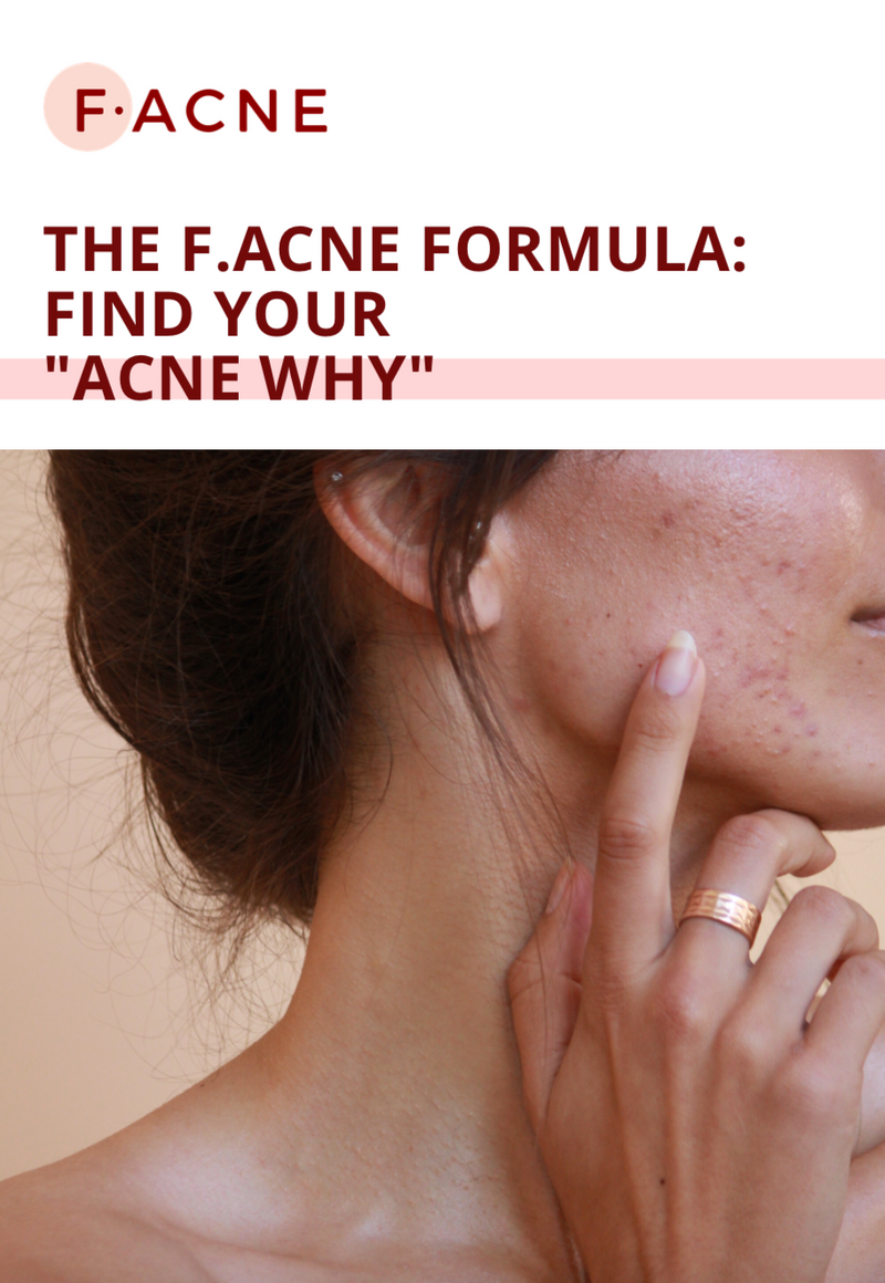 FREE eBOOK: The F.ACNE Formula - Unrefinedbynicola