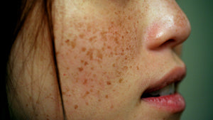 get rid of skin discoloration