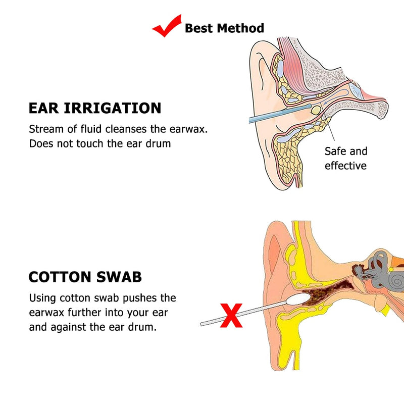Ear Irrigation Cleaning Kit Ear Wax Removal Kit