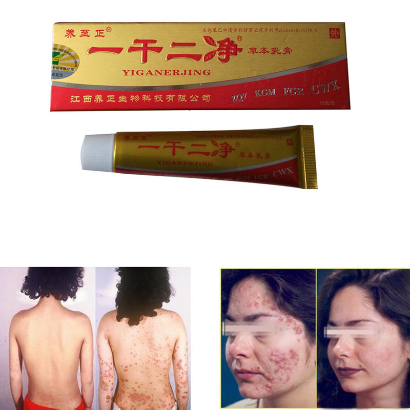 YiGanErJing Natural Herbal Herbal Cream for Psoriasis Eczema Acne Itch