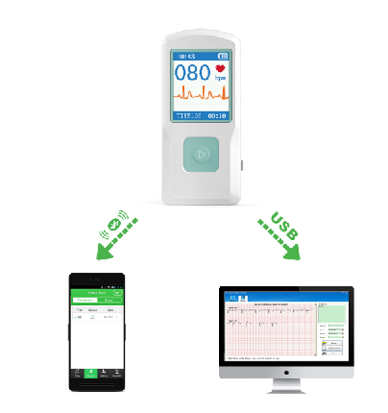 CONTEC PM10 Healthcare Medical Device Quick ECG Detector with Bluetooth Mobile APP Easy test ECG EKG Monitor