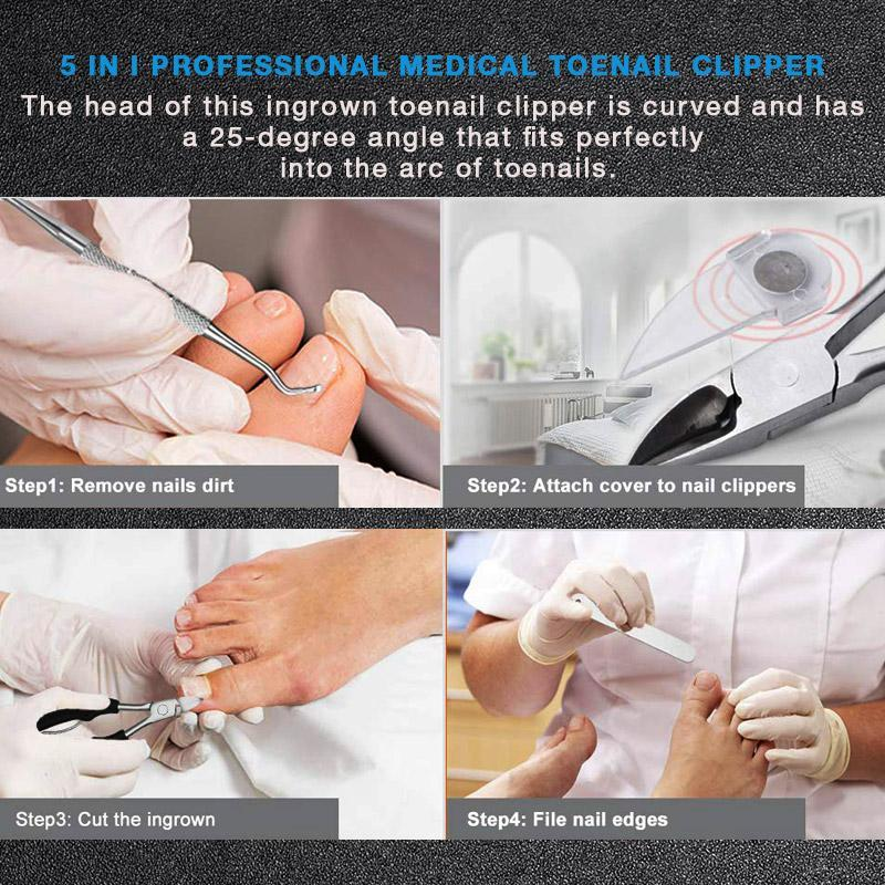 Medical-Grade Nail Clippers - bginvention