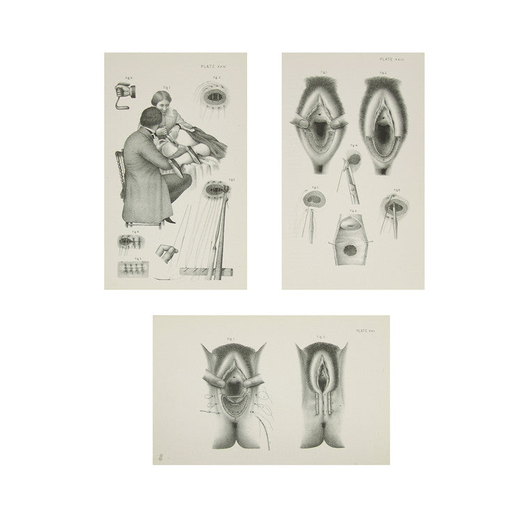 Female Anatomy Prints VIII