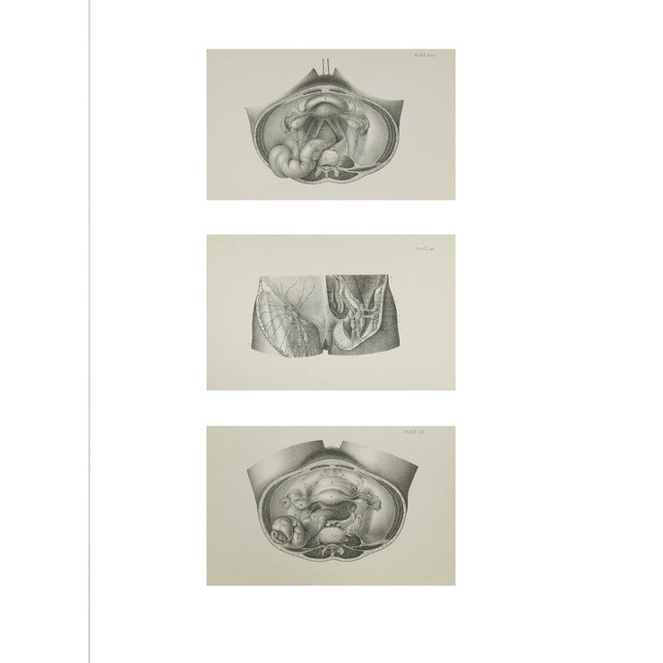 Female Anatomy Prints IX