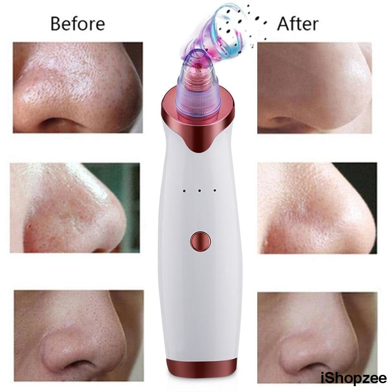 Original Blackhead Remover with Dermasuction - iShopzee