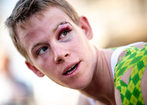 Top Banana: Tour de France 2018 stage 2 – Lawson Craddock