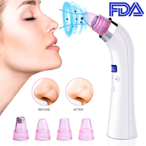 Blackhead Remover - Blackhead Removal Vacuum Suction Blackhead Extractor Tool Pore Vacuum Cleaner Device Beauty Machine For Facial Skin Care Treatment