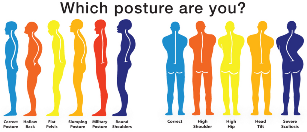 How does your Sitting Posture Impact your Health