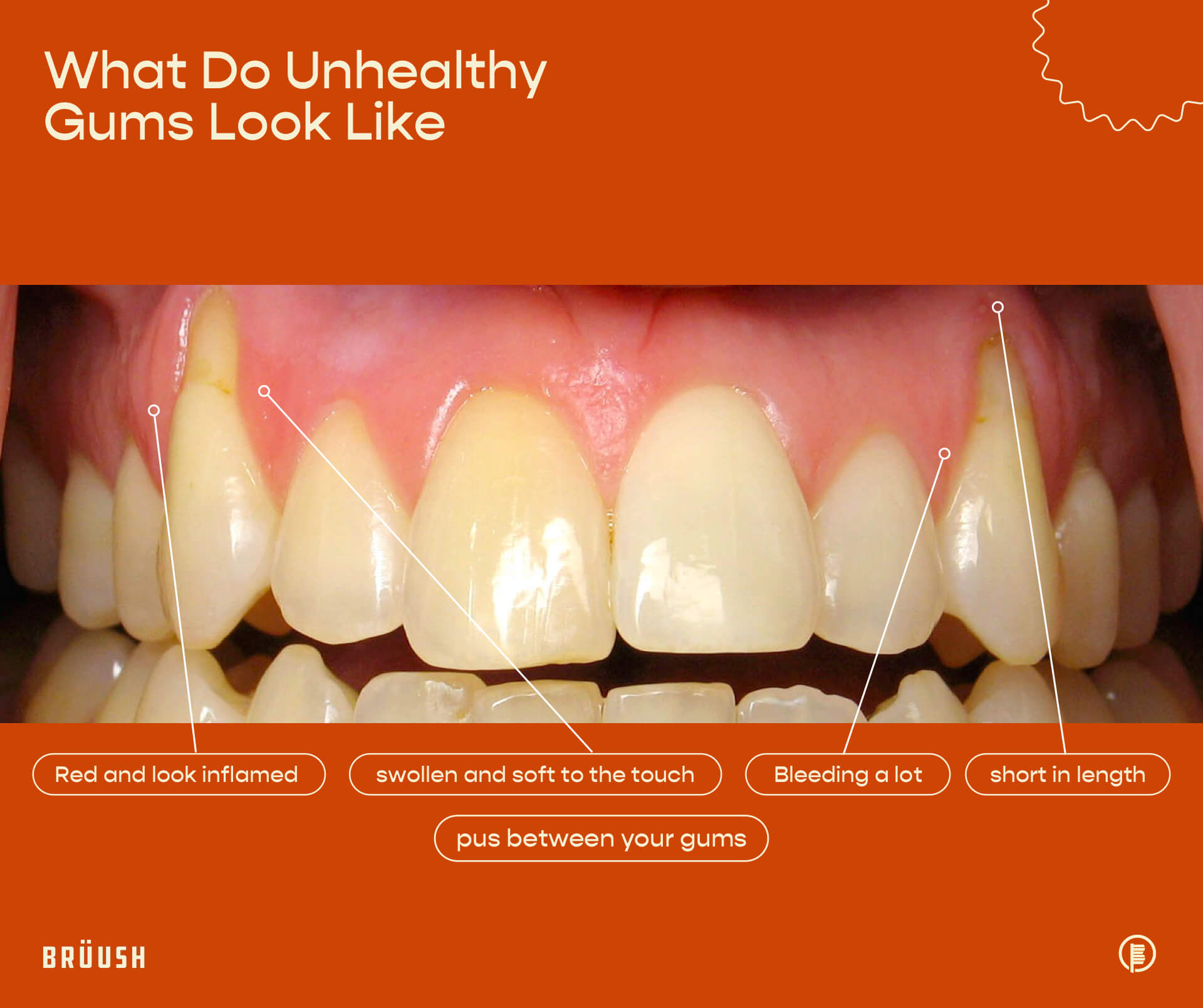 What Do Unhealthy Gums Look Like Visual