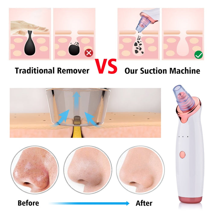 Power Suction Blackhead Cleaner
