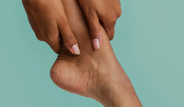 Why do I have dry, cracked heels?