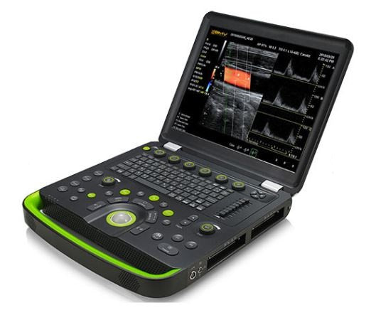 BCU60 4D Veterinary Hand-Carried Color Doppler Ultrasound