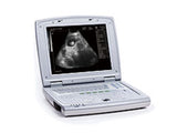 KX5000V Veterinary B Mode Laptop Notebook Ultrasound Scanner - Utech Medical Device Pty Ltd