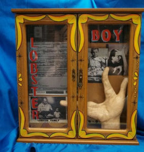 "Grady Stiles ""Lobster boy"" hand cast life mask / life cast Death cast Death mask"