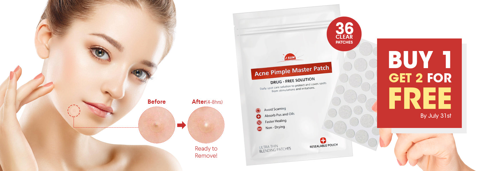 acne patch buy1 get 2 free