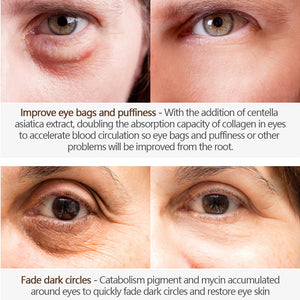 Magic Eye Cream-28 seconds to remove bags under eyes / dark circles / eye wrinkles