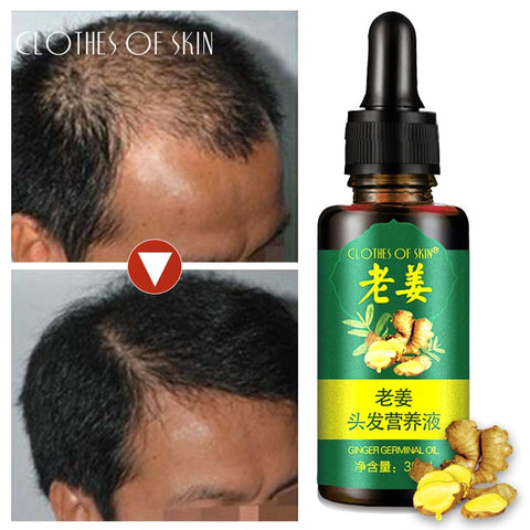 Image of 100% Ginger Essential Oil For Hair Growth