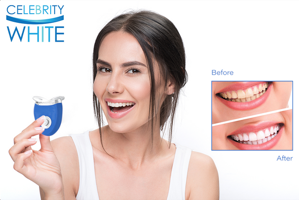 Celebrity White Premium Teeth Whitening Kit