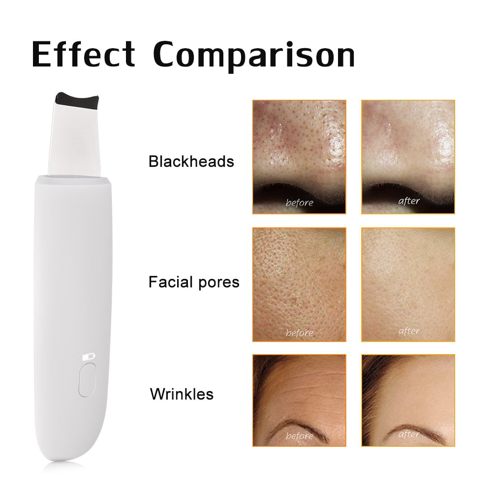 Bzeey Main Image 4-Rechargeable Ultrasonic Face Skin Scrubber Massager Face Cleaning Anion Face Skin Care Peeling Lifting Acne Removal Scrubber
