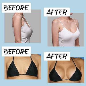 Pro Breast Lifting Treatment Patch