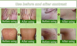 Advanced Psoriasis & Eczema Cream